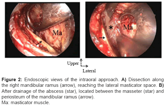 clinical-microbiology-Endoscopic-views-intraoral-approach