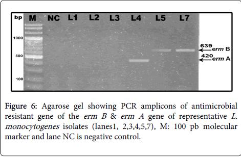 clinical-microbiology-molecular-marker-lane-NC