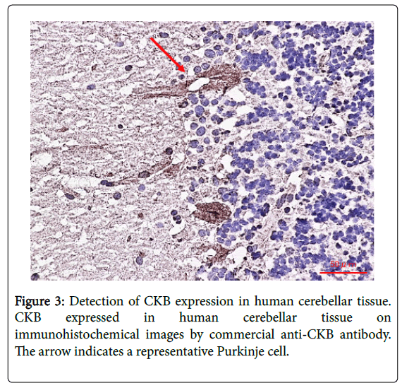 clinical-neuroimmunology-detection-ckb