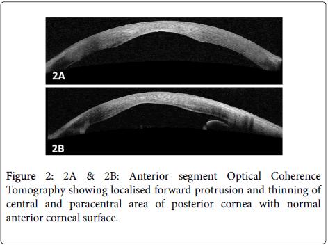 clinical-ophthalmology-Anterior-segment