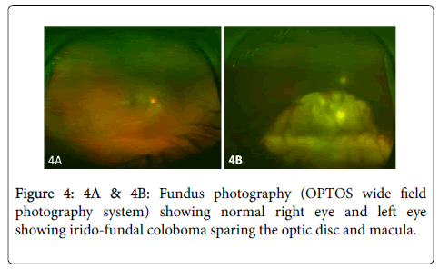 clinical-ophthalmology-Fundus-photography