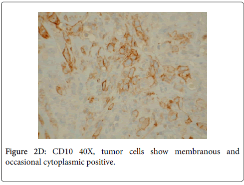 clinical-ophthalmology-cytoplasmic-positive