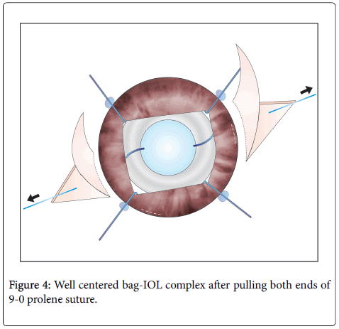 clinical-ophthalmology-prolene-pulling