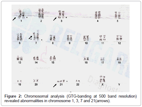 clinical-pathology-Chromosomal-analysis