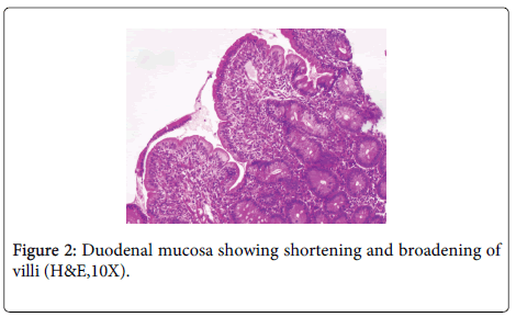 clinical-pathology-Duodenal-mucosa