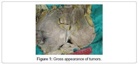 clinical-pathology-Gross-appearance