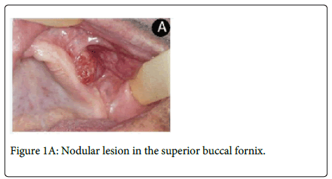 clinical-pathology-Nodular-superior