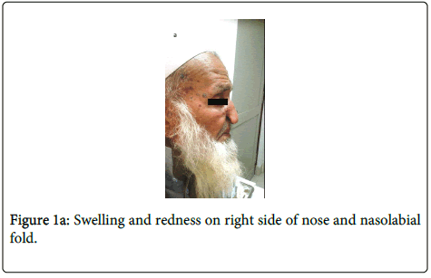 clinical-pathology-Swelling-redness
