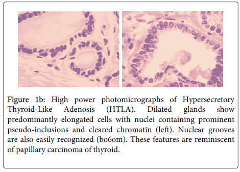 clinical-pathology-Thyroid-Like-Adenosis