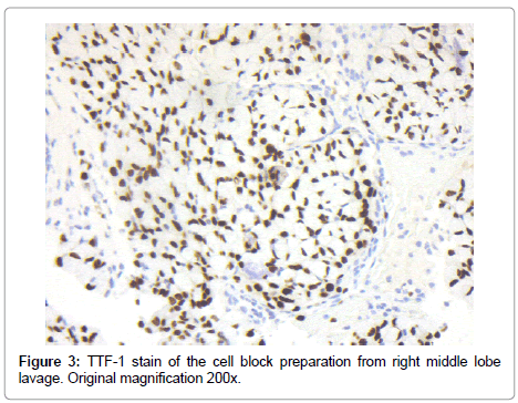 clinical-pathology-cell-block-preparation