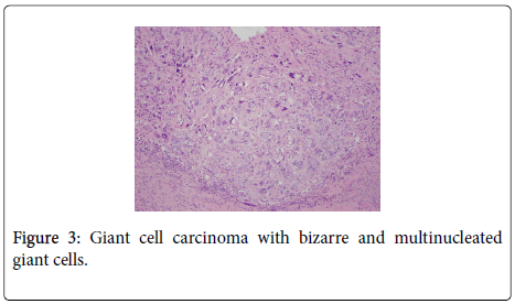 clinical-pathology-cell-carcinoma