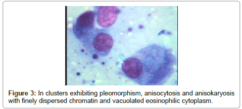 clinical-pathology-cytoplasm-anisokaryosis