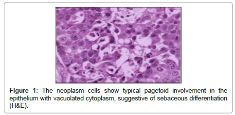 clinical-pathology-neoplasm-cells