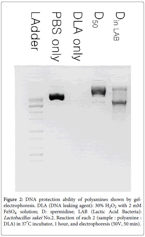 clinical-pathology-polyamines-gelelectrophoresis
