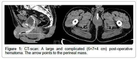 clinical-pathology-post-operative