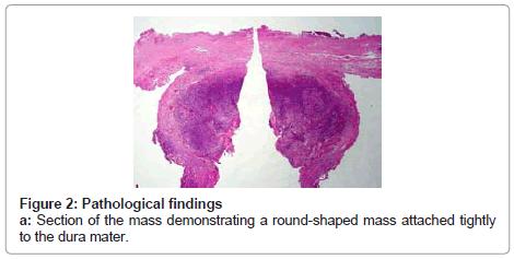 clinical-pathology-round-shaped-mass