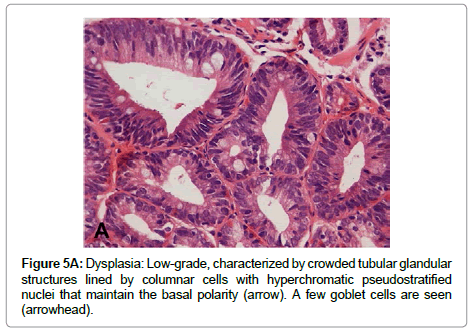 clinical-pathology-tubular-glandular