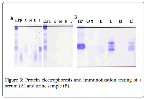 clinical-research-bioethics-Protein-electrophoresis