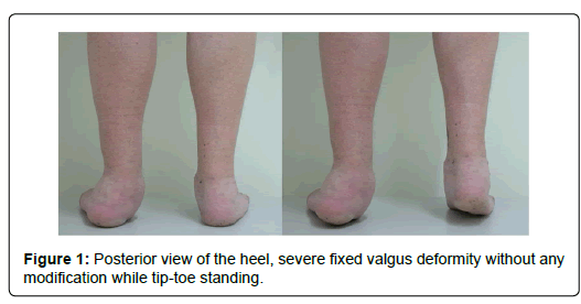 clinical-research-foot-Posterior-view-heel