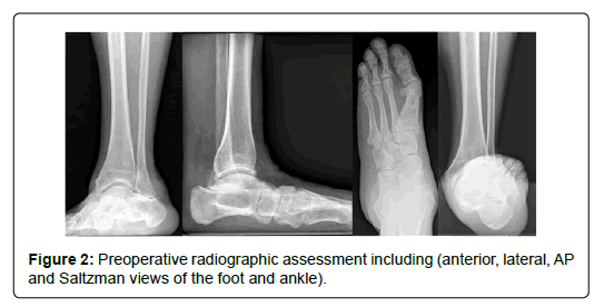 clinical-research-foot-Preoperative-radiographic-assessment