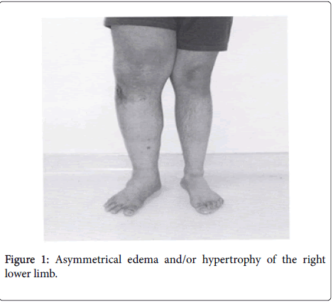 clinical-research-foot-ankle-Asymmetrical-edema-hypertrophy