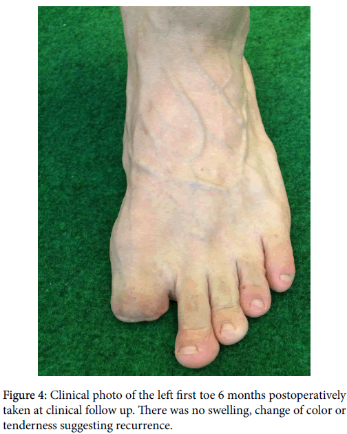 clinical-research-foot-ankle-Clinical-photo-left-first-toe