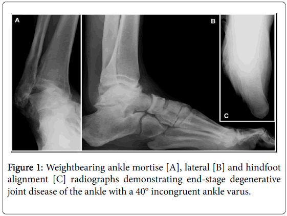 clinical-research-foot-ankle-Weightbearing-ankle