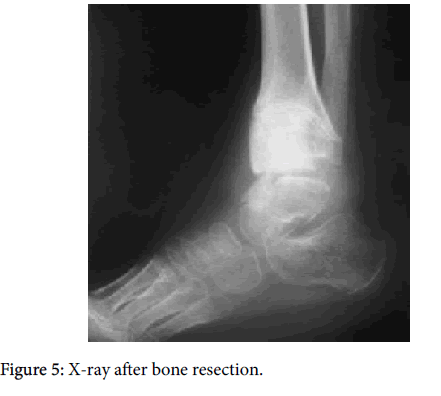 clinical-research-foot-ankle-X-ray-bone-resection