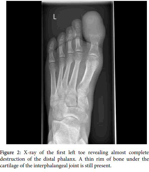 clinical-research-foot-ankle-first-left-toe