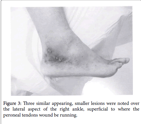 clinical-research-foot-ankle-peroneal-tendons-wound