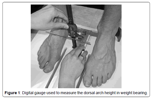 clinical-research-foot-dorsal-arch-height