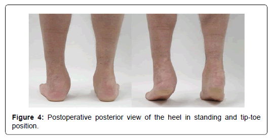 clinical-research-foot-heel-standing-tip-toe