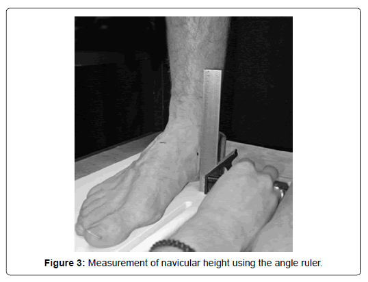 clinical-research-foot-navicular-height