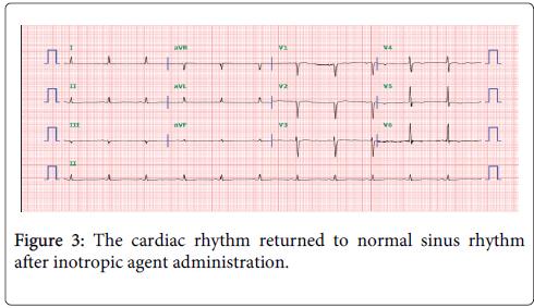 clinical-toxicology-cardiac-rhythm