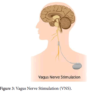 clinical-trials-Brick-Vagus-Nerve-Stimulation