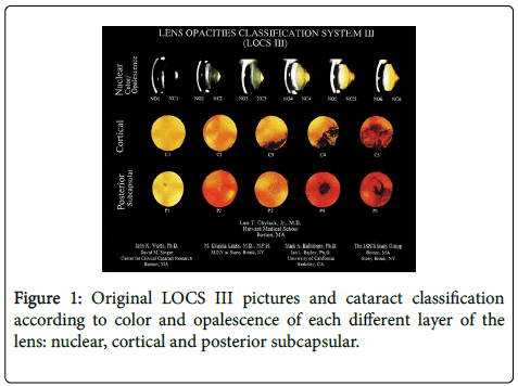 clinical-trials-cataract-classification