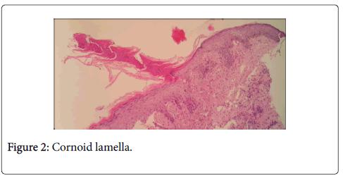 clinical-trials-therapy-Cornoid-lamella