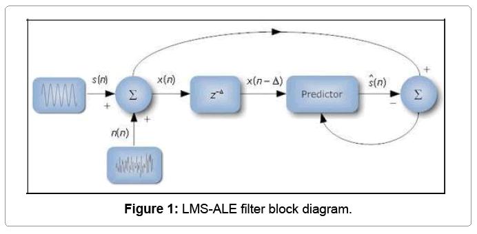 Implementation of LMS-ALE Filter using Vedic Algorithm