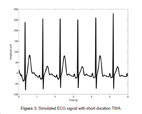 computer-science-systems-biology-Simulated-ECG-signal
