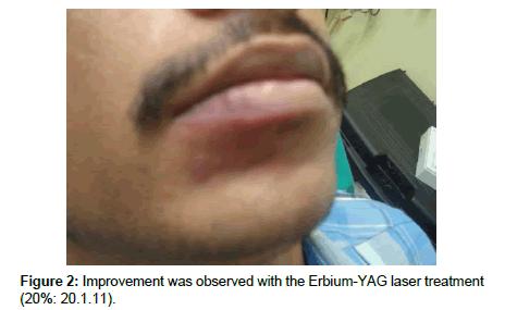 cosmetology-orofacial-surgery-Erbium-YAG-laser