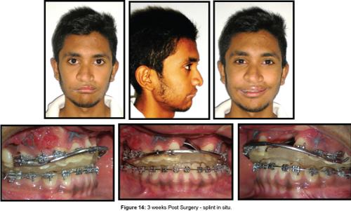 cosmetology-orofacial-surgery-Post-Surgery