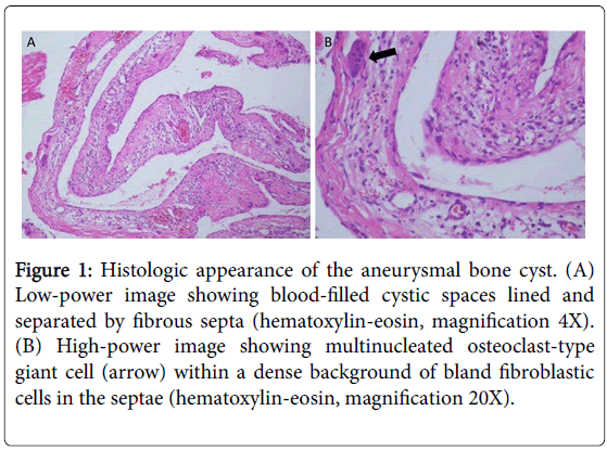 currentissue-orthopedic-oncology-Histologic-appearance