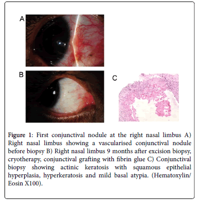 Conjunctival Dysplasia and Atypical Secondary Acquired ...