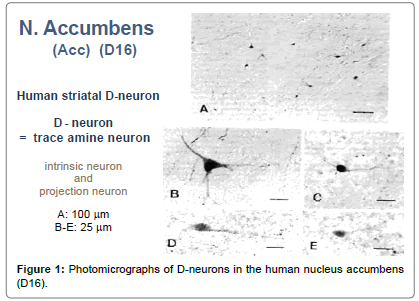 cytology-histology-Photomicrographs-D-neurons