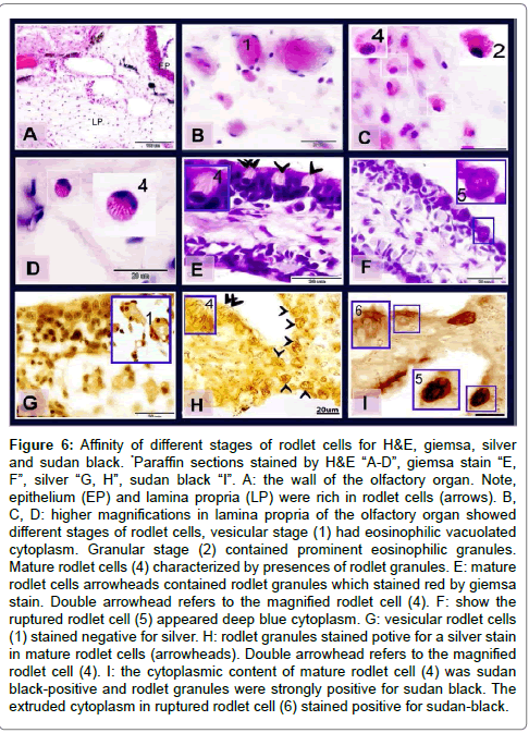 cytology-histology-affinity-different-stages