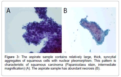 cytology-histology-aspirate