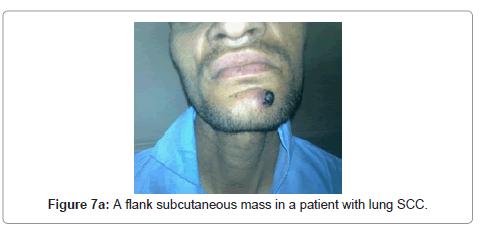 cytology-histology-flank-subcutaneous