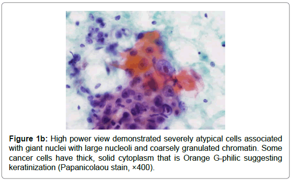 cytology-histology-high-power-view-demonstrated