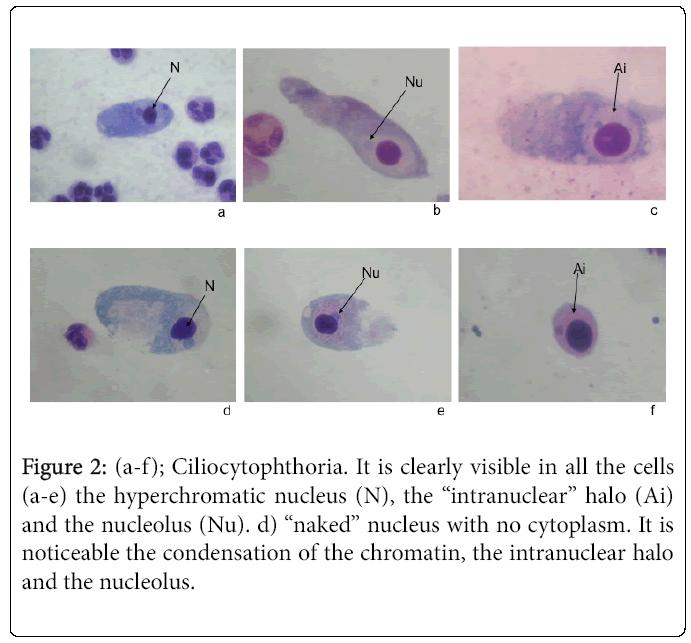 cytology-histology-hyperchromatic-nucleus