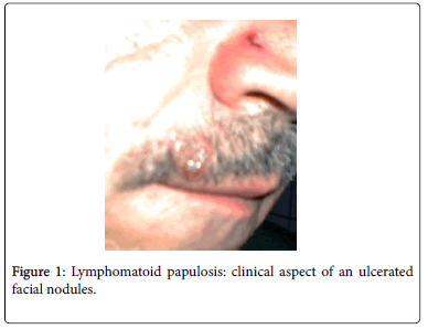 cytology-histology-lymphomatoid-papulosis